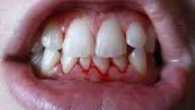 Diş eti kanaması nedir ? Nasıl tedavi edilir ?